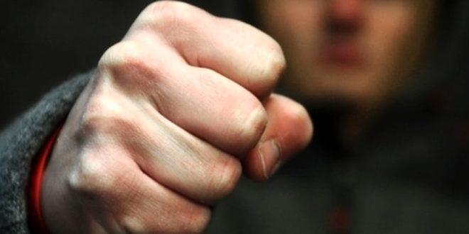 PUGNI IN FACCIA AI PASSANTI SENZA MOTIVO :ARRESTATO AGGRESSORE SERIALE E' SANTERMANO